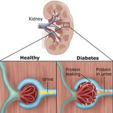 Kidney Damage due to diabetes