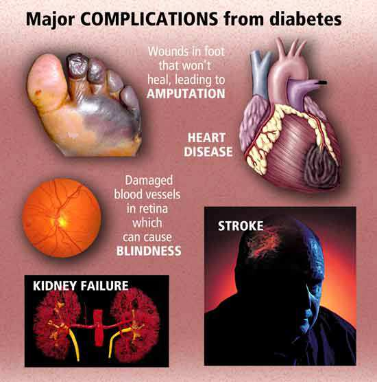 majo diabetes-complications
