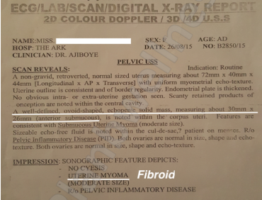 Scan Confirms No More Fibroid After Treatment