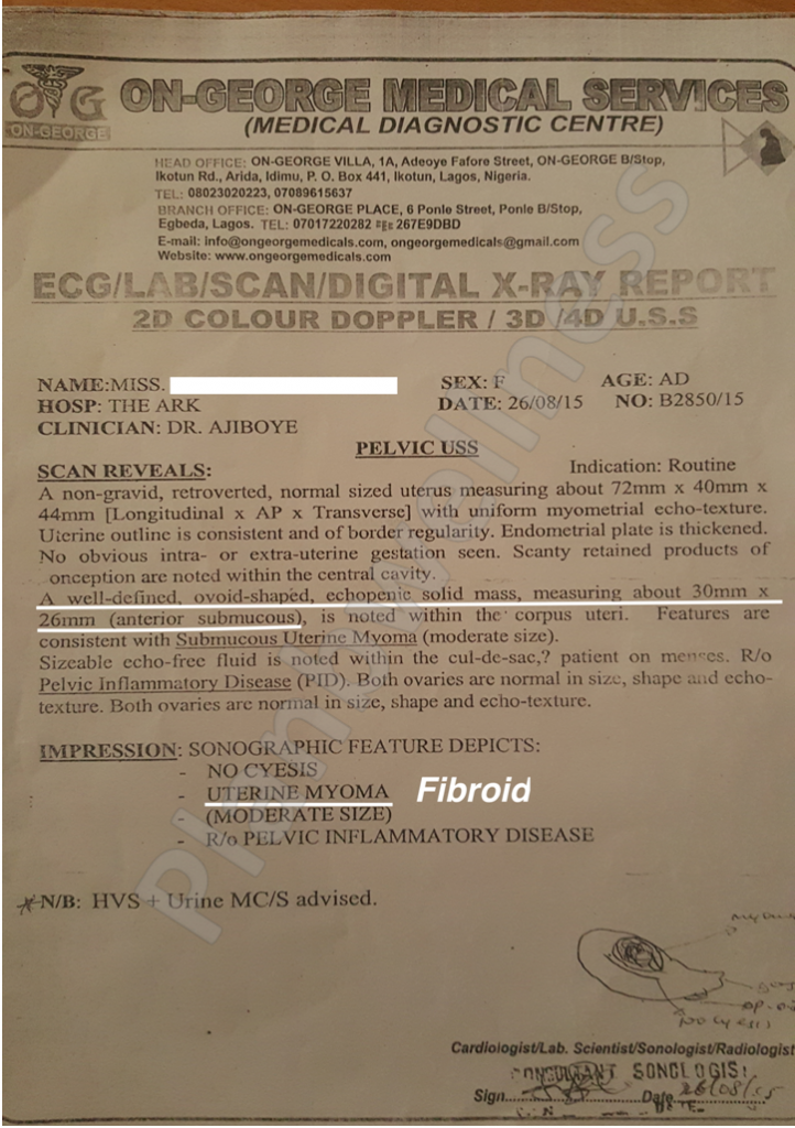 Scan Confirms No More Fibroid After Taking FibClear