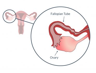 IS OVULATION POSSIBLE WITH BLOCKED FALLOPIAN TUBES?