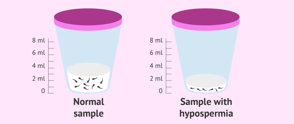 Low Semen Production (Hypospermia)