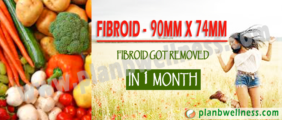 FIBROID – 90MM X 74MM FIBROID GOT REMOVED IN ONE MONTH