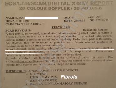 NO FIBROID: Scan Confirms No Fibroid After Treatment