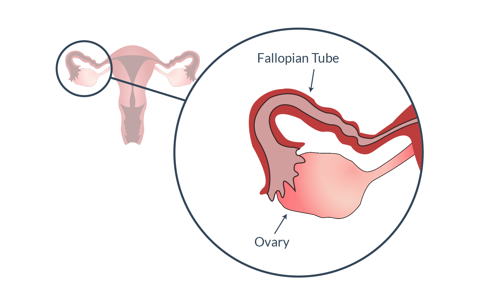 Is Ovulation Possible With Blocked Fallopian Tubes
