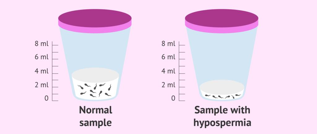 Low Semen Production (Hypospermia)