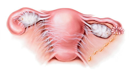 What Actually Are Intrauterine Adhesions?