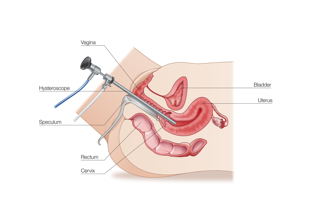 Asherman Syndrome surgery