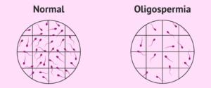 Low-Sperm-Count-Oligospermia