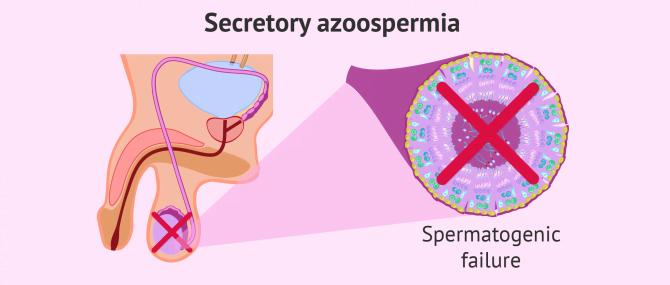 Causes of azoospermia