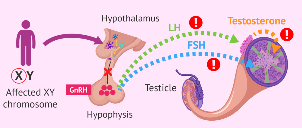 hormonal disorder azoospermia