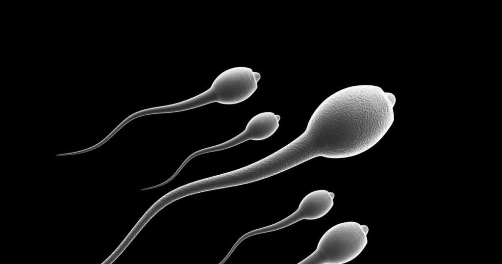 Low sperm count can be caused by a number of health issues and medical treatments. Some of these include: Varicocele. A varicocele (VAR-ih-koe-seel) is a swelling of the veins that drain the testicle. It's the most common reversible cause of male infertility. Although the exact reason that varicoceles cause infertility is unknown, it might be related to abnormal testicular temperature regulation. Varicoceles result in reduced quality of the sperm. Infection. Some infections can interfere with sperm production or sperm health or can cause scarring that blocks the passage of sperm. These include inflammation of the epididymis (epididymitis) or testicles (orchitis) and some sexually transmitted infections, including gonorrhea or HIV. Although some infections can result in permanent testicular damage, most often sperm can still be retrieved. Ejaculation problems. Retrograde ejaculation occurs when semen enters the bladder during orgasm instead of emerging out of the tip of the penis. Various health conditions can cause retrograde ejaculation or lack of ejaculation, including diabetes, spinal injuries, and surgery of the bladder, prostate or urethra. Certain medications also might result in ejaculatory problems, such as blood pressure medications known as alpha blockers. Some ejaculatory problems can be reversed, while others are permanent. In most cases of permanent ejaculation problems, sperm can still be retrieved directly from the testicles. Antibodies that attack sperm. Anti-sperm antibodies are immune system cells that mistakenly identify sperm as harmful invaders and attempt to destroy them. Tumors. Cancers and nonmalignant tumors can affect the male reproductive organs directly, through the glands that release hormones related to reproduction, such as the pituitary gland, or through unknown causes. Surgery, radiation or chemotherapy to treat tumors also can affect male fertility. Undescended testicles. During fetal development one or both testicles sometimes fail